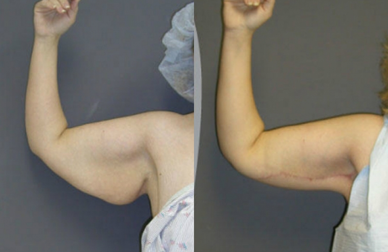 Arm Lift Before Amp After Pictures Mae Plastic Surgery