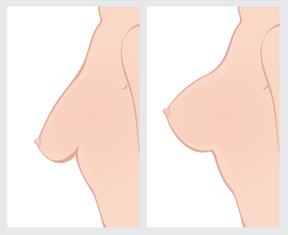 breast lift in Chicago Illinois