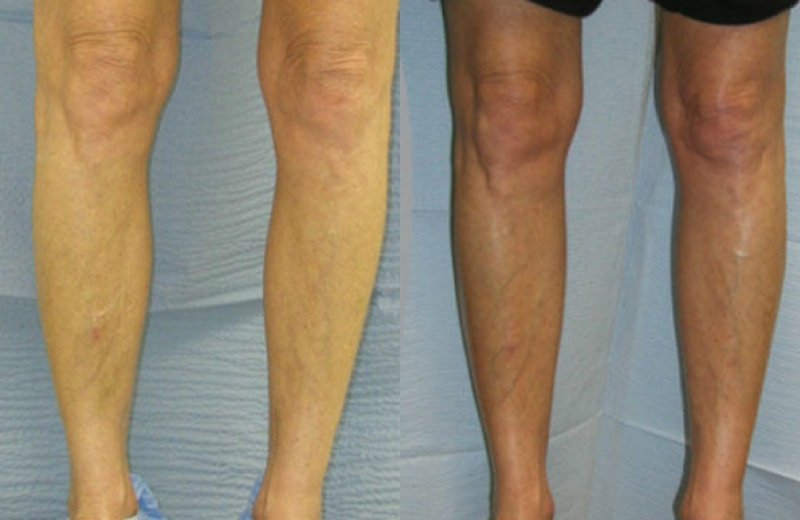 Patient 2 - Calf Augmentation - Age: 56 - 90 Days After Surgery