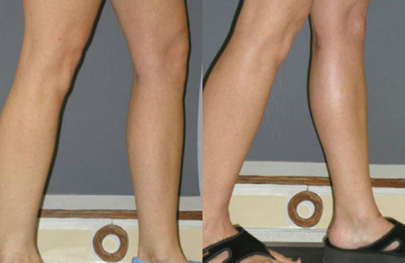 Patient 3 - Calf Augmentation - Age: 56 - 90 Days After Surgery
