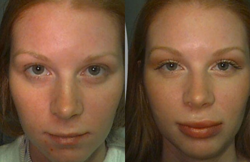 Patient 3 - Upper and Lower Lip Augmentation with Alloderm Implant - Age: 22 - 90 Days After Surgery.