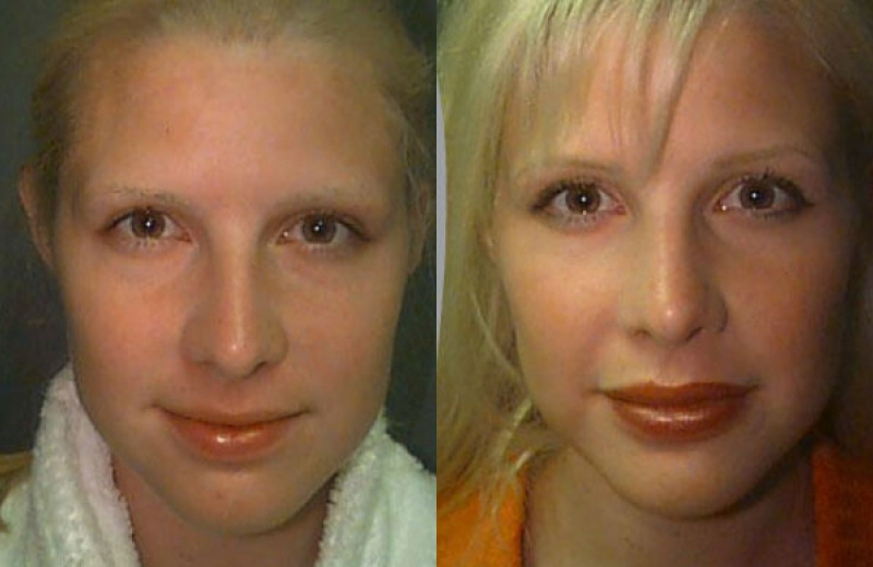Patient 4 - Upper and Lower Lip Augmentation with Alloderm Implant - 90 Days After Surgery
