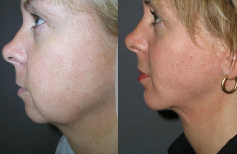 Patient 6 - Chin Augmentation with Implant / Neck Liposuction - Age: 41 - 90 Days Post-Op