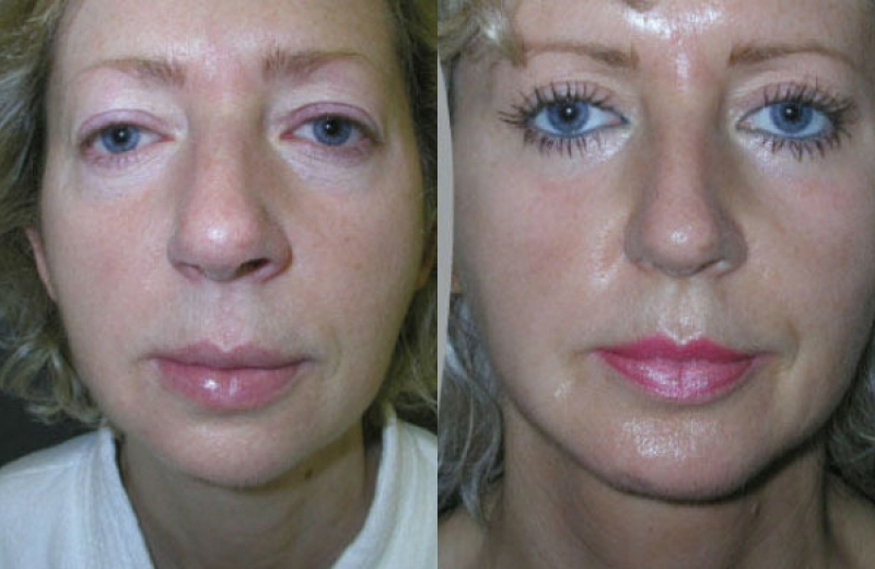 Patient 7 - Chin Augmentation with Implant / Neck Liposuction / Upper Eyelid - Age: 46 - 90 Days Post-Op