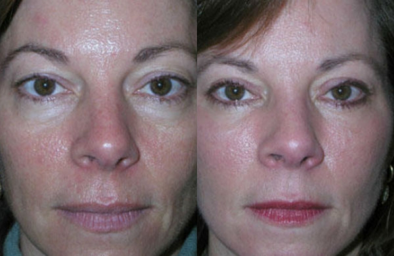Fat Grafting Before Amp After Pictures Mae Plastic Surgery