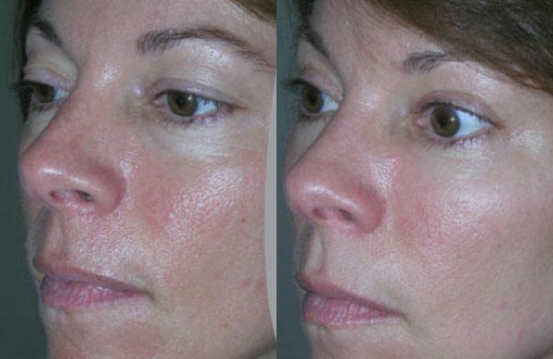 Cosmetic Surgery Fat Transfer 83