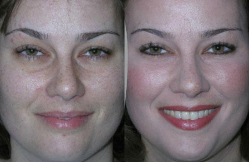 Cosmetic Surgery Fat Transfer 26