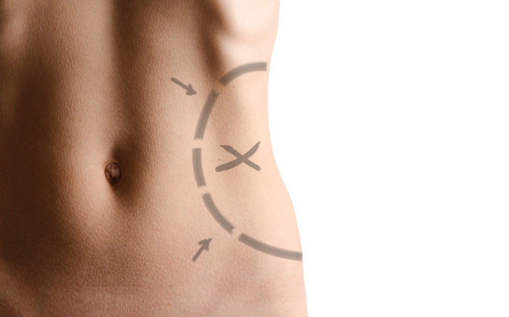 liposuction in chicago illinois