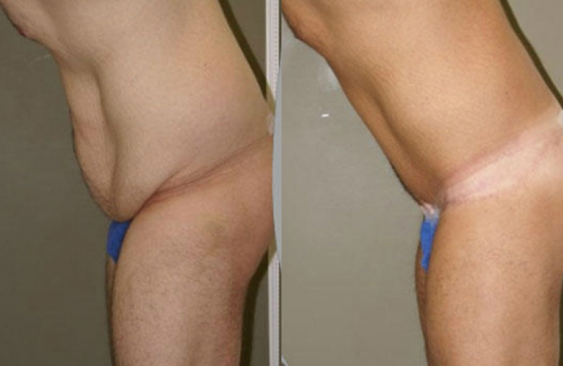Patient 2 Body Lift Age: 27 365 Days After Surgery.