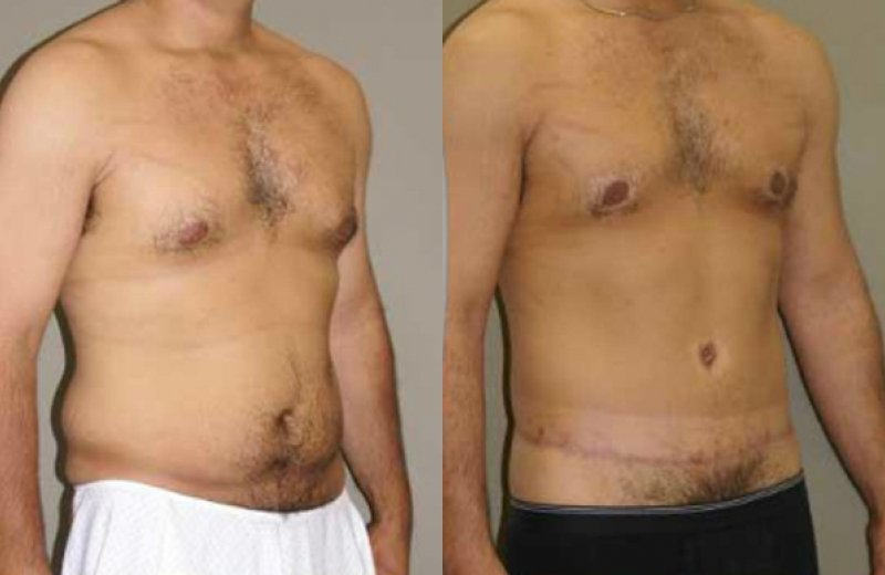 Patient 3 - Body Lift - Age: 34 - 180 Days After Surgery.