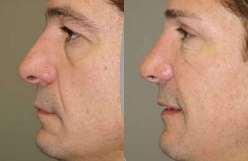 Patient 2 - Upper Eyelid Bleph/ Fat Grafting Lower Eyelids with Chemical Peel/Rhinoplasty - Age: 50 - 150 Days After Surgery.