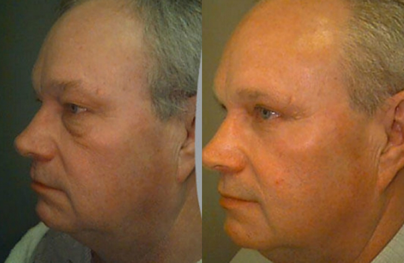 Patient 4 - Upper Eyelids Blepharoplasty/Lower Eyelid TCA Peel - Age: 49 - 90 Days After Surgery.
