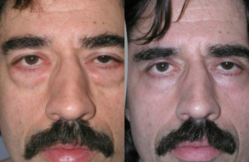Patient 6 - Upper and Lower Eyelid Blepharoplasty - Age: 47 - 90 Days Post-Op