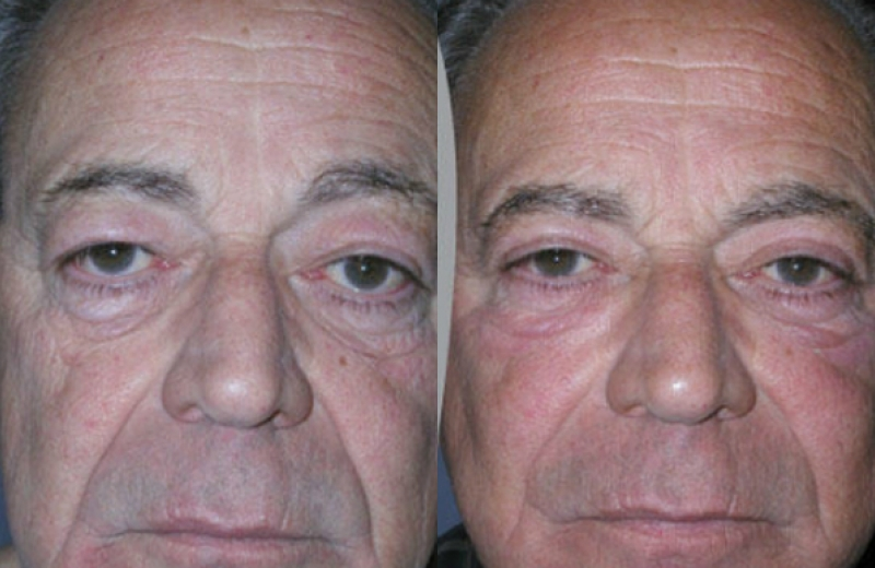Patient 7 - Upper and Lower Eyelid Blepharoplasty - Age: 61 - 90 Days Post-Op