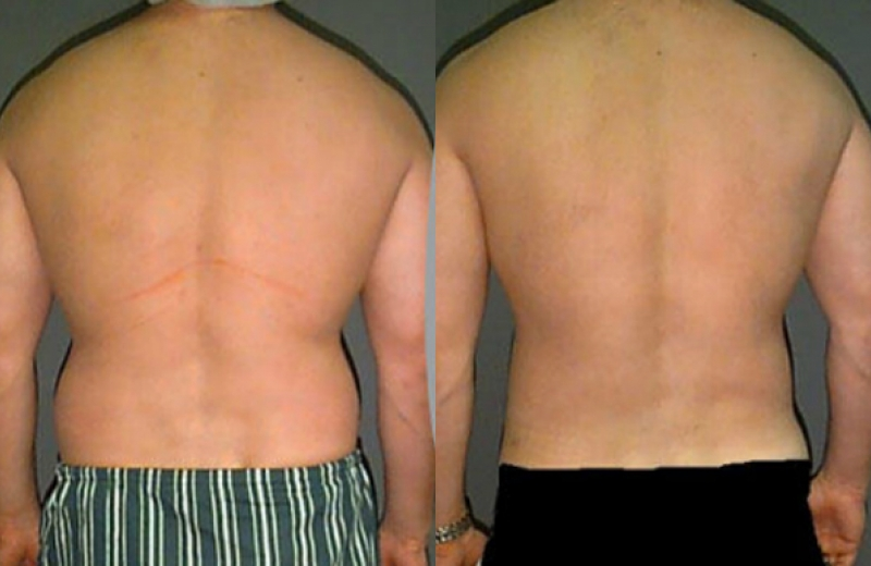 Patient 3 - Liposuction of Abdomen and Hips - Age  32 - 90 Days After    Liposuction Men Stomach