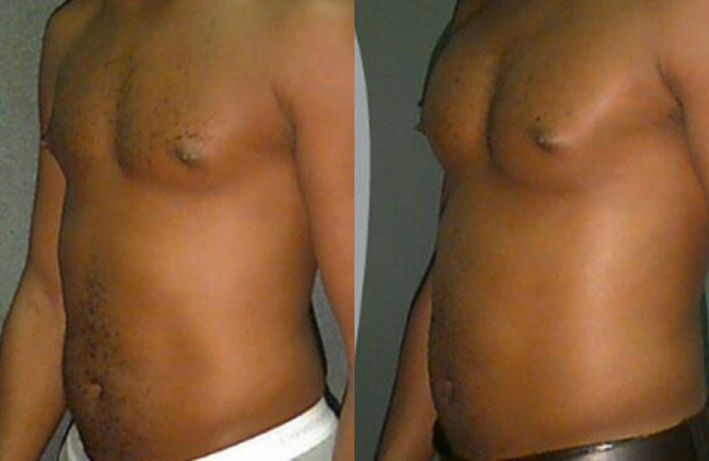 Patient 1 - Pectoral Augmentation with Implants - Age: 35 - 90 Days After Surgery.