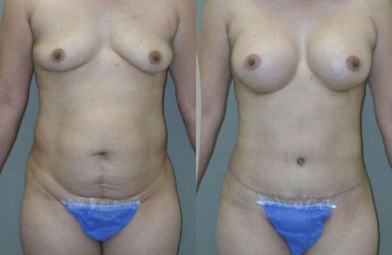 Breast Augmentation Chicago - Northwestern Plastic Surgery